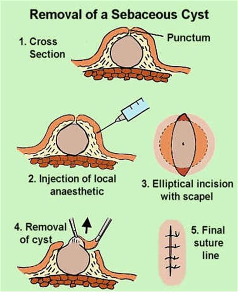 natural remedy to dissolve skin cysts picture 1