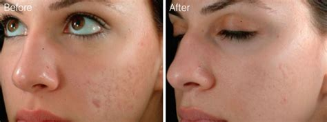 anti aging derma roller picture 10