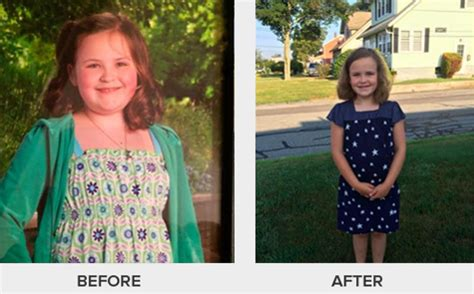children and weight loss picture 5