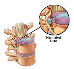 testosterone therapy for herniated disc picture 3