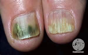 lichen planus toenails picture 7