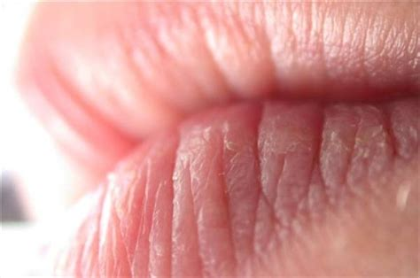 severe chapped lips home remedies picture 3