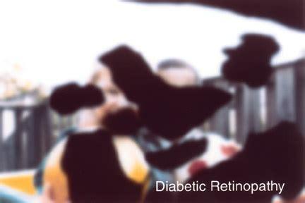 diabetic eye radio spots picture 13