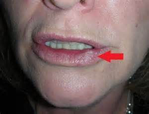 lip cancer photo picture 13