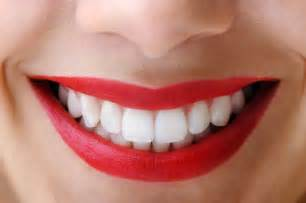 teeth whitener picture 5