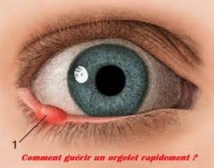 how to cure kuliti picture 3