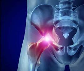 chronic hip muscle pain picture 5