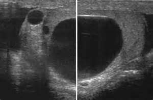 male epididymal cyst in homeopathy picture 14