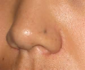 dark spots on skin picture 11