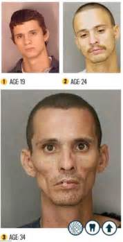 meth and drugs physical aging picture 1