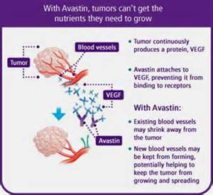 avastin colon cancer metastasis picture 2