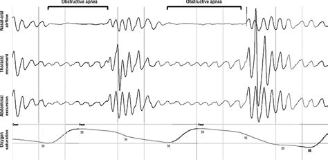 protocol for scoring hypopneas in polysomnography sleep study picture 9