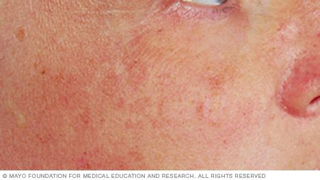 what does liver spots look like picture 1
