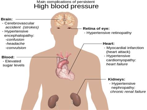 Articles on high blood pressure picture 11