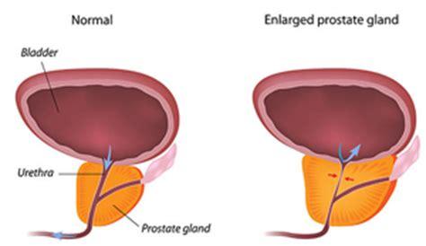Prostate picture picture 7
