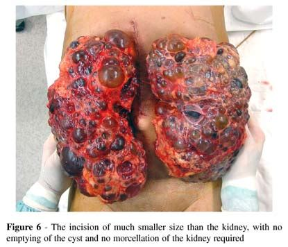 what are fatty liver cysts picture 5