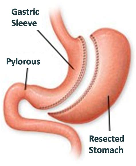 gastric intestinal surgery picture 2