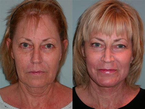 what is strongist face laser treatment in 2014 picture 5