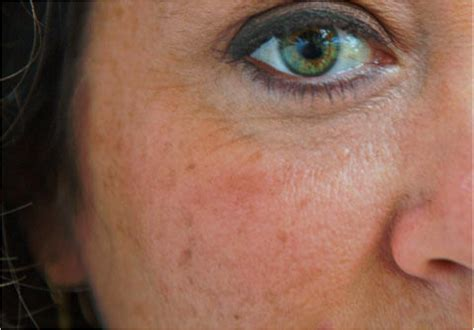 dermagraphic skin picture 1