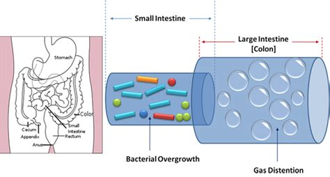 small and large el overgrowth of bacteria germ picture 8