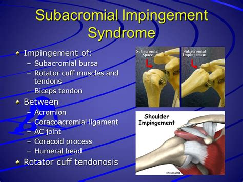 joint impingement syndrome picture 1