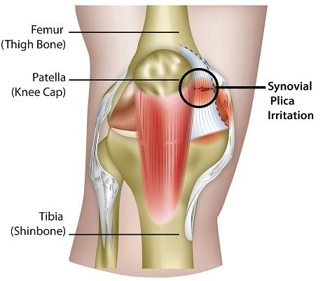 knee pain causes picture 3