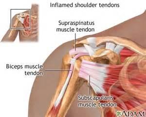 diagnose shoulder muscle tear picture 5