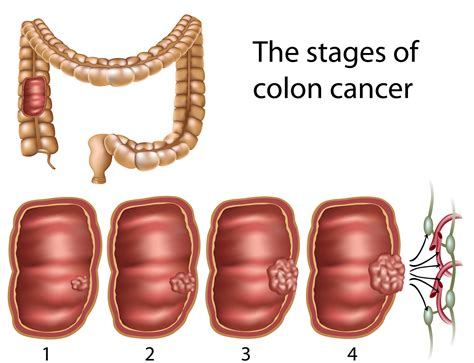 about colon problems for men picture 14