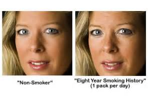 effects of smoking on your skin picture 5