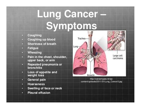 second hand smoke diseases picture 9
