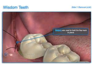 wisdom tooth extraction picture 15
