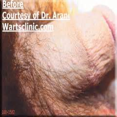 anal wart picture 18