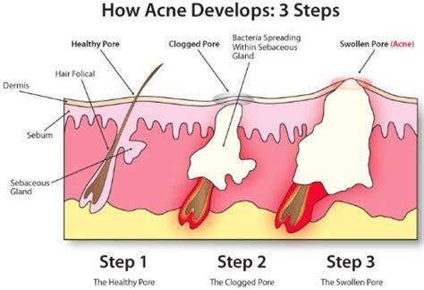 acnepril in dubai picture 10