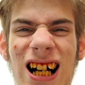 children yellow teeth whitening picture 9