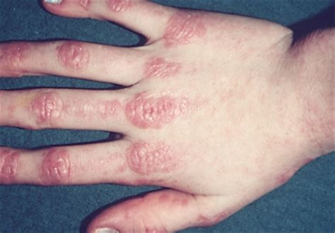 about herbs skin disease signs &symptoms picture 7