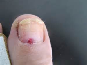 skin under toe picture 7