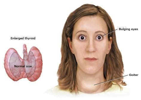 hyperactive thyroid symptoms picture 11