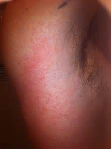 any itching medicine in whole body by dr picture 9