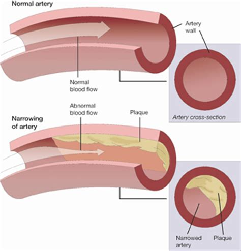fatty deposits in penis blood flow picture 3