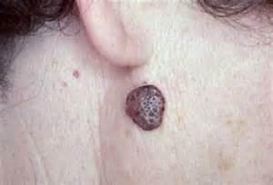 hiv minor skin lesions picture 9