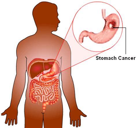 malignant liver tumors picture 6