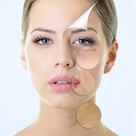 ageing skin picture 18