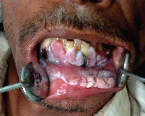 dysplastic teeth picture 5