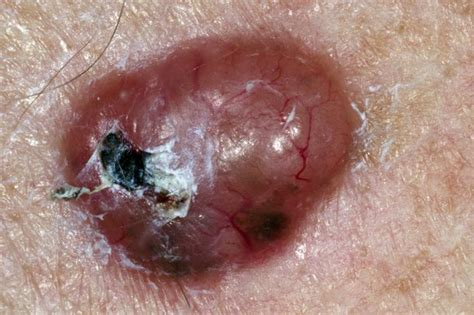 pictures of melanoma skin cancer picture 2