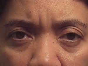 eye muscle weakness picture 2