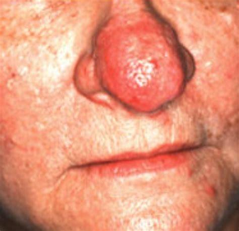 acne rosacea phymatous picture 13