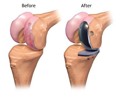 partial knee joint replacement picture 1