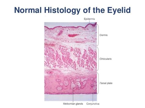 basal cell skin c picture 2