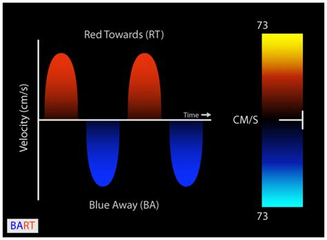 doppler thyroid red blue picture 3