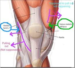 pain just right of knee cap picture 14